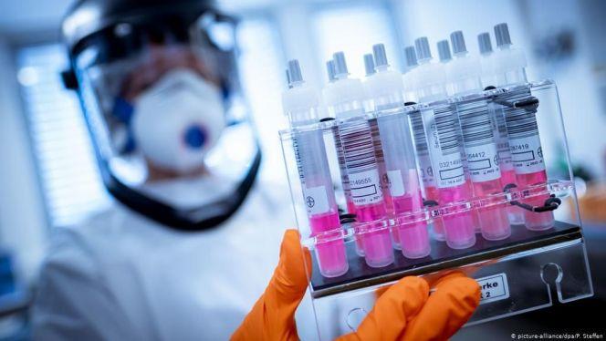 اختبارات كواشف PCR