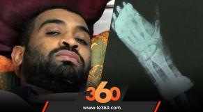 cover Video - Le360.ma • لأول مرة بسوس طاقم طبي يعيد كفا بعد أن بترت بسيف بإنزكان