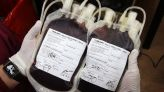 تحاقن الدم