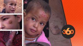 cover Video - Le360.ma • خطير..داء اللشمانيا يفتك بالأطفال والكبار بزاكورة