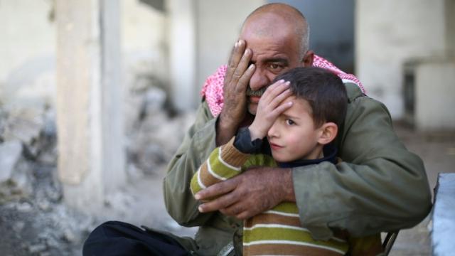Syrie-bébé-borgne-2