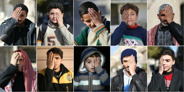Syrie-bébé-borgne