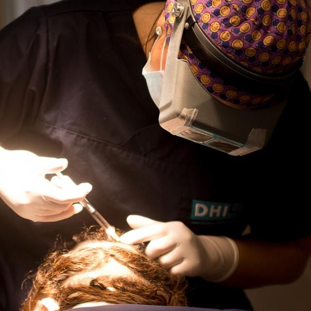 La greffe des cheveux