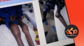 Hémophilie au Mali