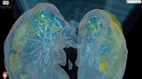 Poumons infectés par le Covid-19