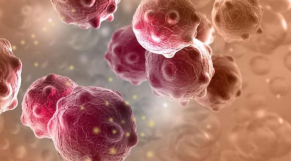 Cameroun: un plan national pour prévenir et lutter contre le cancer