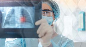 Radiographie poumons