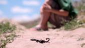 Piqûres scorpions