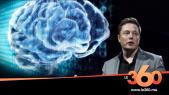 Cover Vidéo - L'implant cérébral d'Elon Musk, la science fiction dépasse la réalité