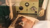 Electrochoc - Electro-convulsivothérapie - Dépression - Traitement de choc